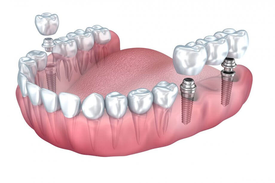 Implant-supported Bridges