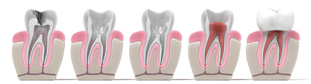 Root Canal Therapy Process
