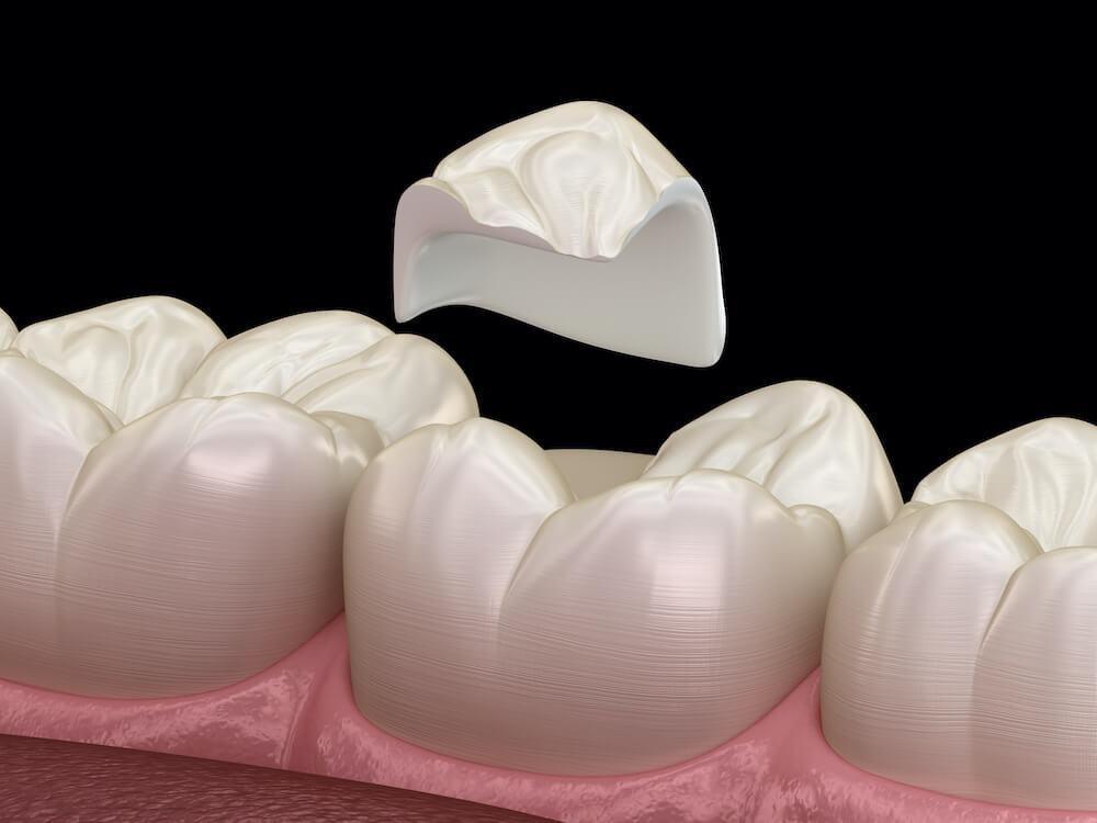 dental only