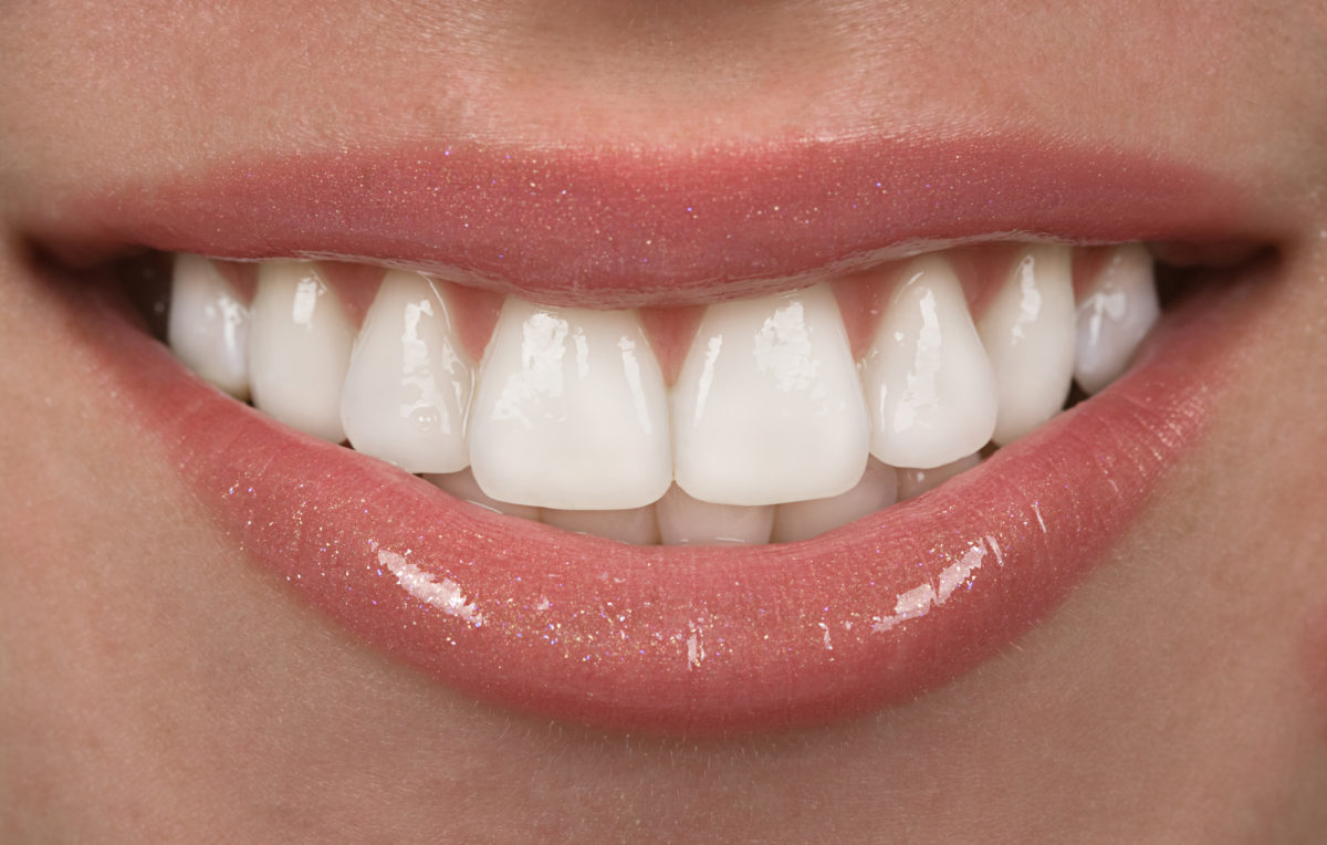 Invisalign Cost: How Much Is It and Is It Worth It?